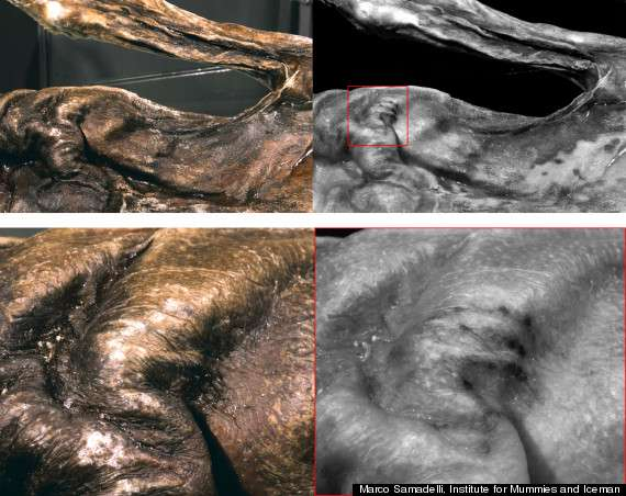 A análise da pele da múmia revelou a nova tatuagem escondida em camadas mais profundas da pele de cor escura de Ötzi Foto: The Huffington Post/Reprodução