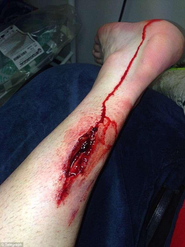 La herida en la pierna de Stephen Ireland, tras la entrada de Figueroa. Foto: @Telegraph