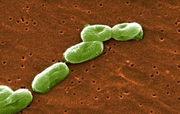 """""""El hecho que las autoridades no puedan establecer cómo pudo producirse la difusión de la bacteria es muy preocupante"""", dijo Richard Ebright, experto en seguridad biológica de la Rutgers University, en Nueva Jersey. Foto: Getty Images/Archivo"""