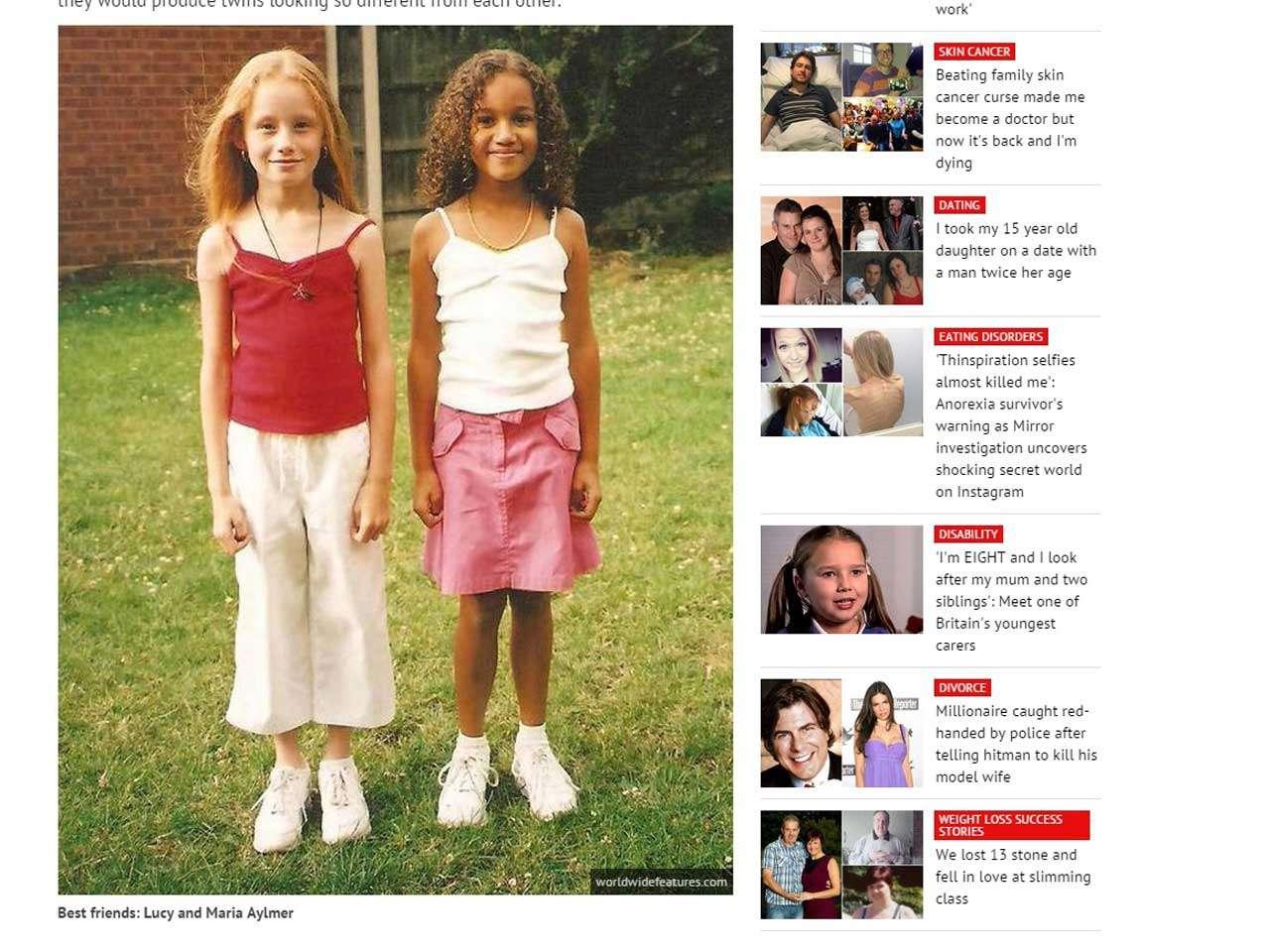 Lucy y María, las dos gemelas que no se parecen en nada, son un caso atípico entre niños que nacen simultáneamente. Foto: Mirror.co.uk