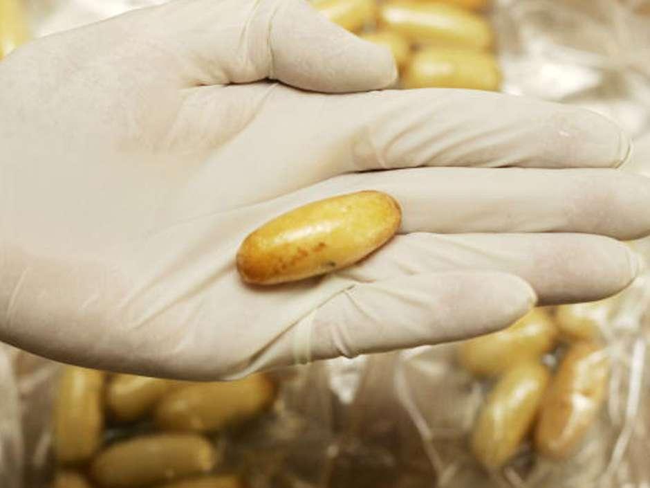 Extraen 104 cápsulas de droga a niña colombiana que iba a ser usada como mula. Foto: Archivo/Getty Images