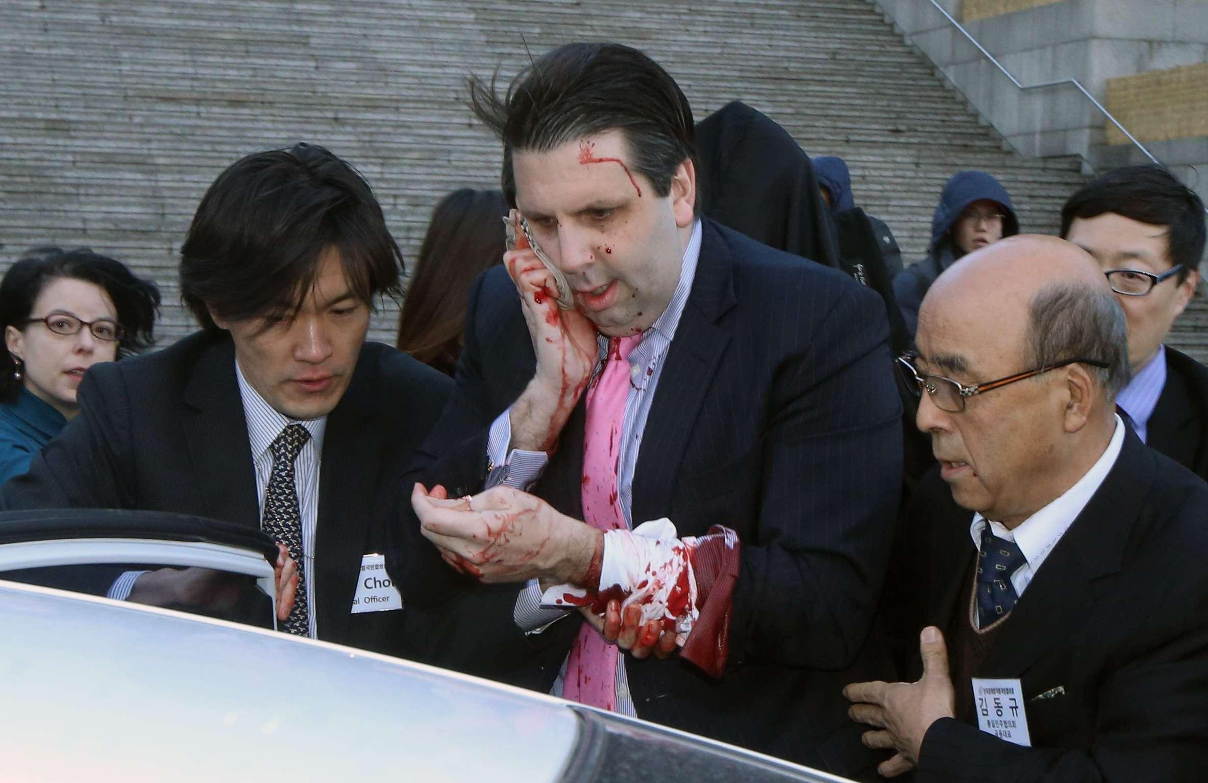 O embaixador teve de passar por cirurgia e levou 80 pontos no rosto após ataque Foto: Yonhap/Reuters