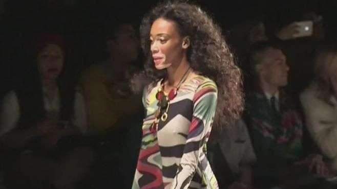 Moda: Modelo con vitíligo lidera inspiradora revolución