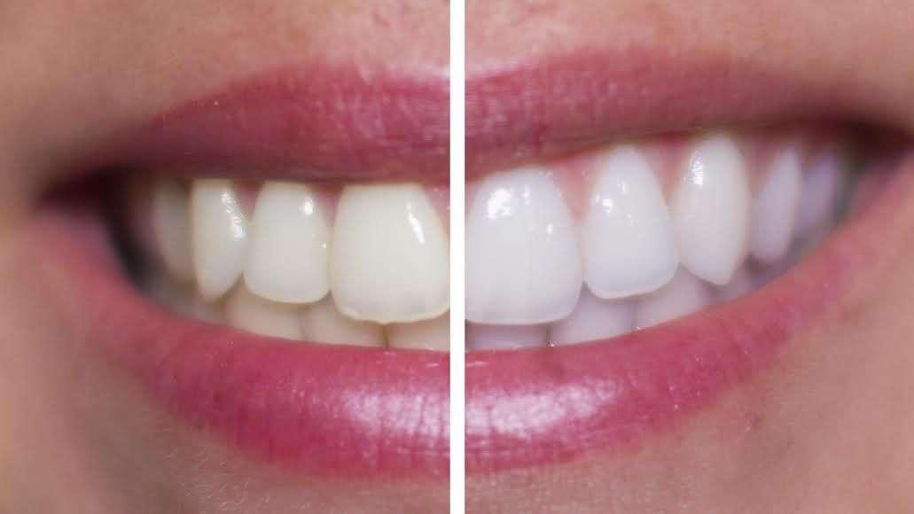 Blanqueamiento de dientes en casa vs profesional