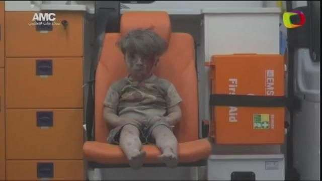Imagen de un niño herido muestra el drama de los bombardeos en Siria