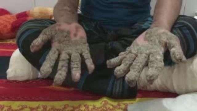 """La cirugía dota de nuevas manos al """"hombre árbol"""" de Bangladesh"""