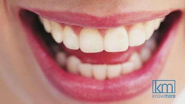 Como obtener la sonrisa perfecta