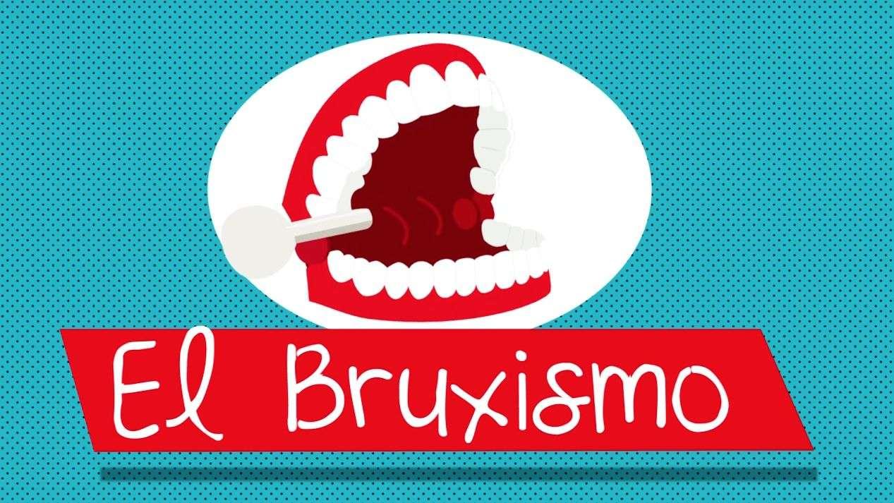 ¿Sabes qué es el Bruxismo?