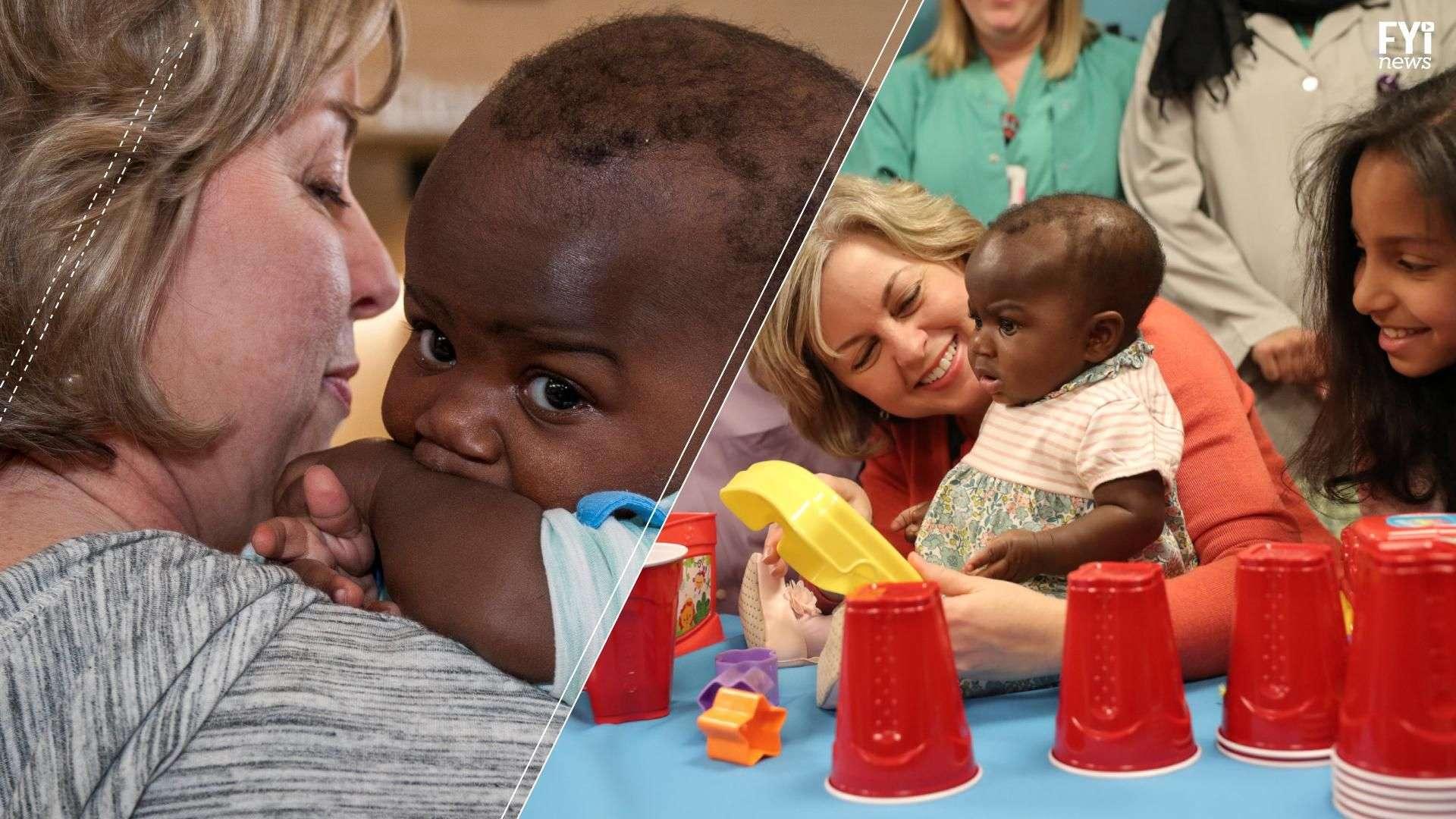 Separan a bebé de su gemelo parásito