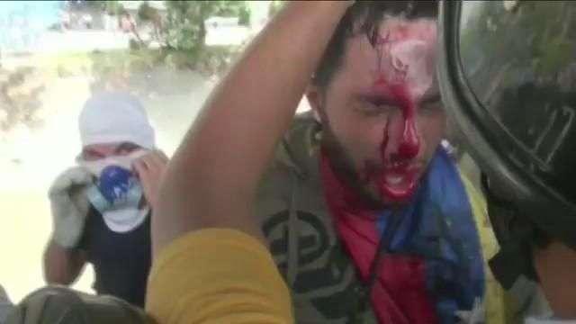 Convocan nuevas marchas en Venezuela tras jornada que ha dejado tres muertos