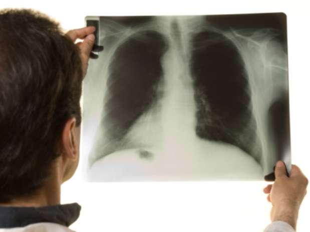 Tuberculosis Foto: Thinkstock