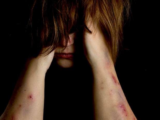 Cortarse y quemarse es la forma en la que algunos adolescentes con problemas expresan sus emociones. Esos adolescentes se autolesionarían cuando no pueden hablar de sus sentimientos, están molestos o tienen baja autoestima. Foto: Thinkstock