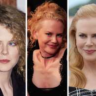 Fotos: Nicole Kidman antes y despus del Botox. Foto: Getty Images