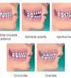 Entenda o que é ortodontia