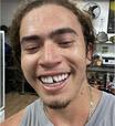 Xi! Whindersson Nunes quebra o dente fazendo esporte
