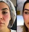 Naiara Azevedo mostra resultado de harmonização facial: 'Busque sua melhor versão'