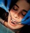 Infográfico: Como a cárie se desenvolve no dente?