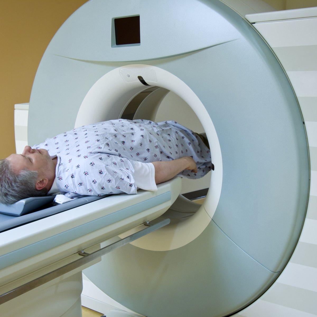 tamsulosina prescrita durante la radioterapia prostática