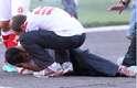 Porém, antes do jogo recomeçar, aconteceu mais um triste desdobramento:o auxiliar técnico da equipe colorada Flávio Galo foi atingido por um rojão atirado em campo. Ele sofreu um corte no rosto e teve perda parcial de audição