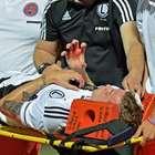 Europa League: jugador termina herido tras graves incidentes