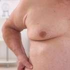 Aumentan consultan por reducción mamaria en hombres