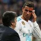 Cristiano Ronaldo diz que segue bonito após chute no rosto