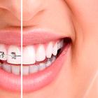 Devo clarear os dentes antes ou depois de colocar aparelho?