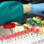 Cortes em bolsas afetam pesquisa sobre o novo coronavírus