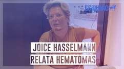 Joice Hasselmann reconstitui episódio sobre seus ferimentos