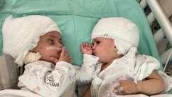 Gêmeas siamesas se veem pela 1ª vez após cirurgia de separação