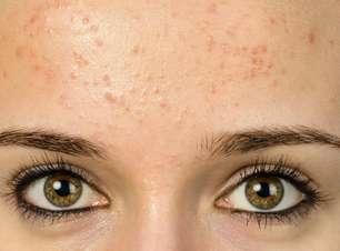 Marquinhas no rosto? Cuidado, acne pode piorar no verão