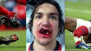 5 videos de fracturas deportivas que te van a hacer sufrir