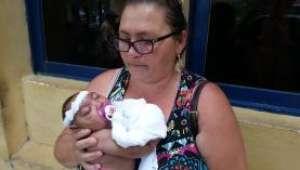 Tia adota sobrinha que foi abandonada com microcefalia