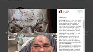 ¡TREMENDO! Luchador de MMA termina con fractura de cráneo