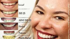 Com ajuda do celular, software cria sorriso personalizado