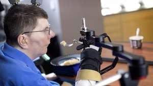 Tetrapléjico vuelve a mover el brazo gracias a implante ...