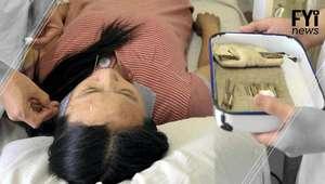 A tecnologia que pode mudar a acupuntura