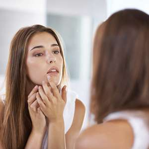 Manchas de pele exigem cuidados com o corpo