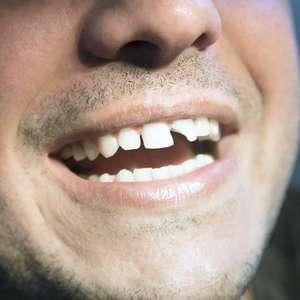 Prefeitura cuida do sorriso do povo em busca do 1º emprego