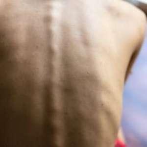 Anorexia nervosa pode ser sinal de mutação genética