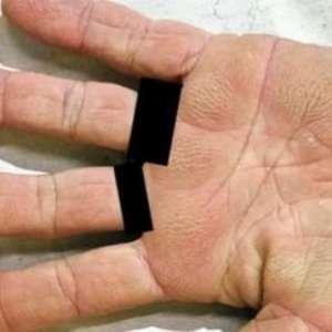 """Mulher descobre câncer de pulmão graças a """"mãos aveludadas"""""""