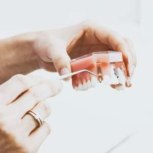 Cinco tratamentos dentários para investir seu 13º salário