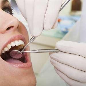 Carillas Dentales: para Mejorar la Apariencia de sus Dientes