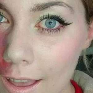 Jovem supera vergonha e posta fotos de mancha no rosto