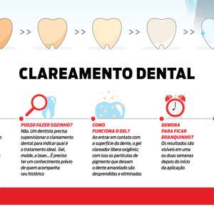 Clareamento dental: o manual definitivo em infográfico