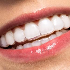 Fim dos aparelhos dentários? Como alinhar os dentes, sem bráquetes, fios e praticamente de forma invisível