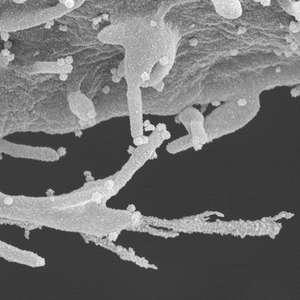 Coronavírus: imagens microscópicas revelam 'tentáculos' ...