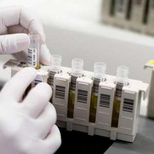 Pesquisa brasileira diz ter eliminado HIV em soropositivo