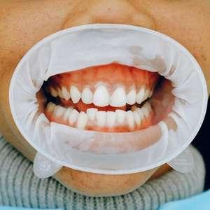 O que é gengitive e como se manifesta? Dentista tira dúvidas