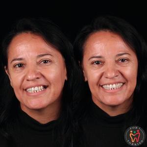 Dentista brasileiro devolve sorrisos a pessoas carentes de graça